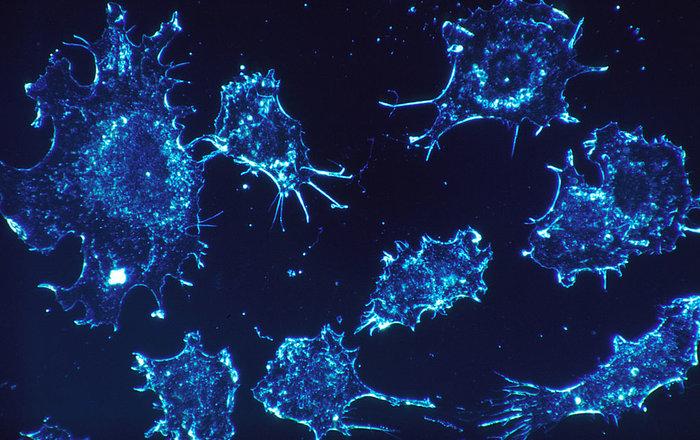 Найден виновник живучести раковых клеток