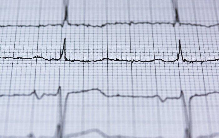 Нейросеть научили диагностировать аритмию точнее врачей