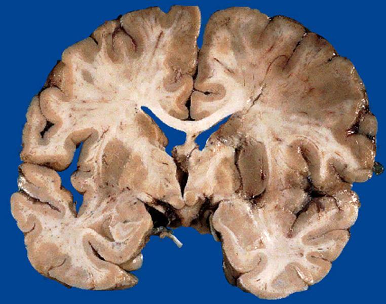 Фронтиры нейронаук. Гистологические срезы мозга научились делать трехмерными