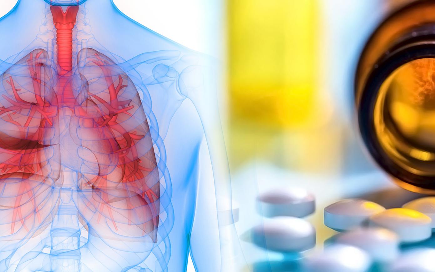 Чем нас лечат от пневмонии