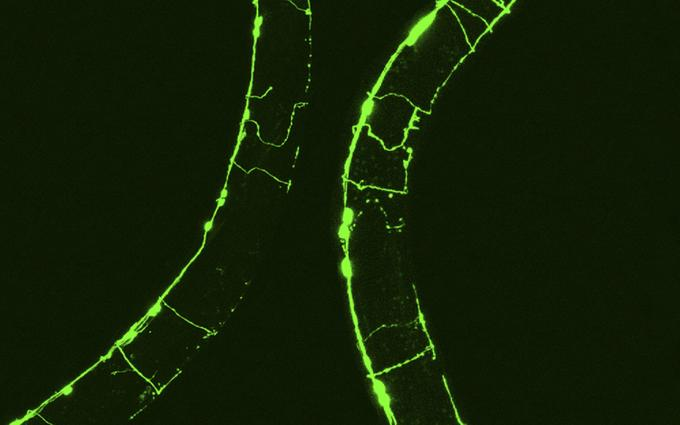 Черви C. elegans  The Journal of Cell Biology/Flickr